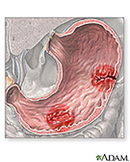 stomachulcers
